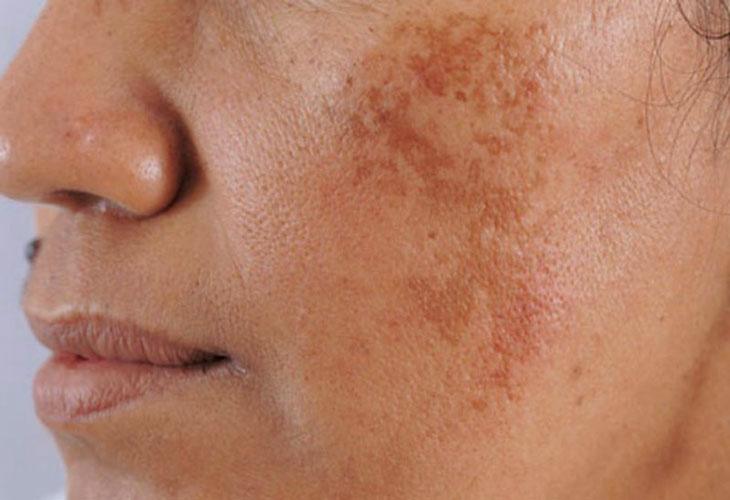 Nám mảng là nám dễ điều trị nhất trong các loại nám da