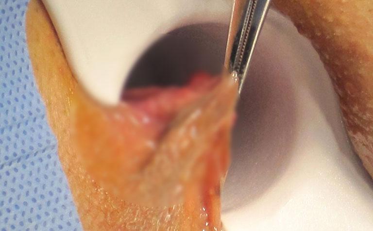 cắt trĩ ngoại như thế nào