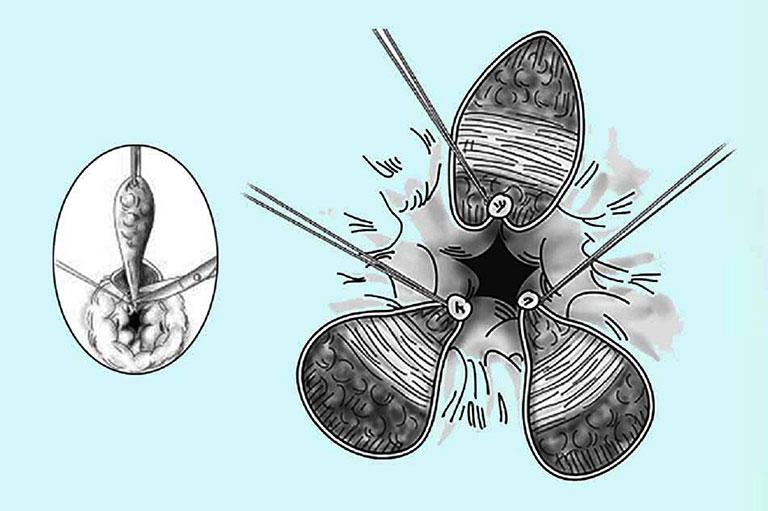 Cắt trĩ bằng phương pháp milligan morgan