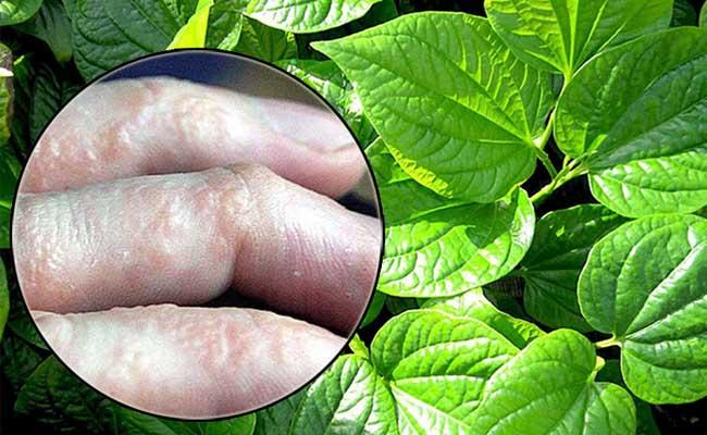 Dùng lá lốt trong điều trị bệnh gout