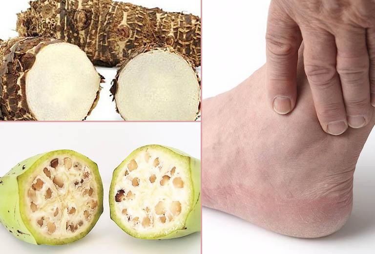 Bài thuốc nam chữa bệnh gout từ chuối hột
