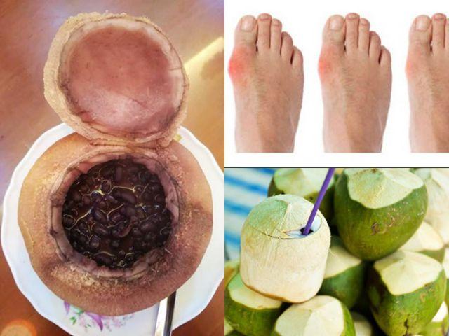 Sử dụng nước đậu đen và nước dừa chữa bệnh gout