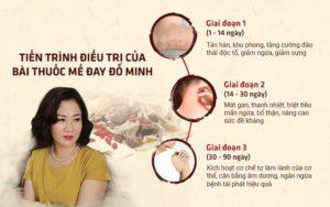 Tiến triển khi sử dụng bài thuốc chữa mề đay của Đỗ Minh Đường