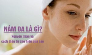 Nám da: Nguyên nhân hình thành và cách điều trị tốt nhất hiện nay
