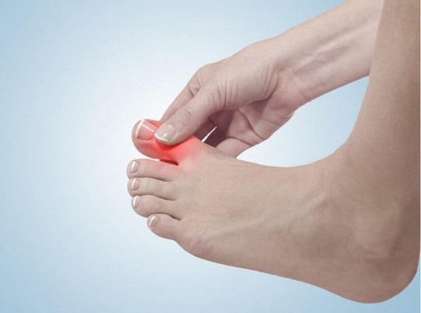 Chế độ vận động có ảnh hưởng rất lớn đến bệnh gout