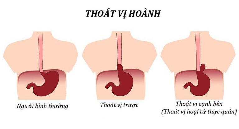 Thoát vị cơ hoành là một trong những nguyên nhân gây ra bệnh viêm thực quản trào ngược độ a