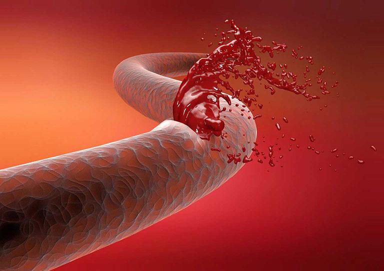 Xuất huyết tiêu hóa xảy ra khi máu khỏi lòng mạch do một số tổn thương tại mạch máu