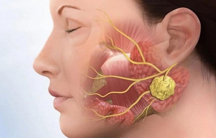 Viêm khớp thái dương hàm làm ảnh hưởng đến khả năng giãn cơ mặt