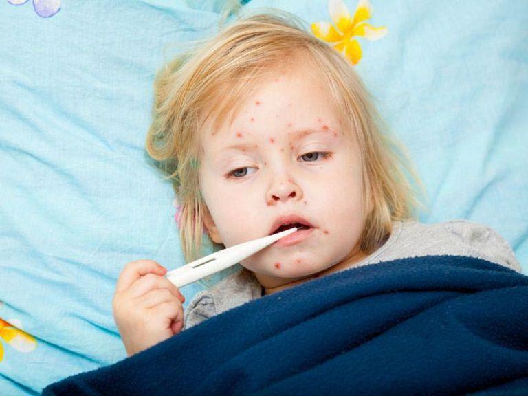 Trẻ có thể bị sốt nổi mẩn đỏ ngứa do sởi