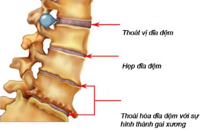 Thoái hóa cột sống là bệnh lý xương khớp thường gặp, nhất là ở vùng xương cột sống