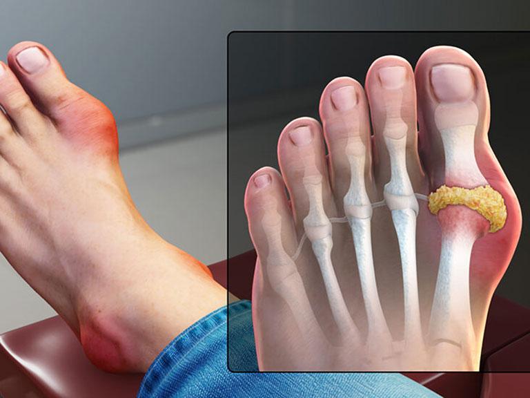 Thuốc Navigout cho hiệu quả điều trị bệnh gout rất tốt