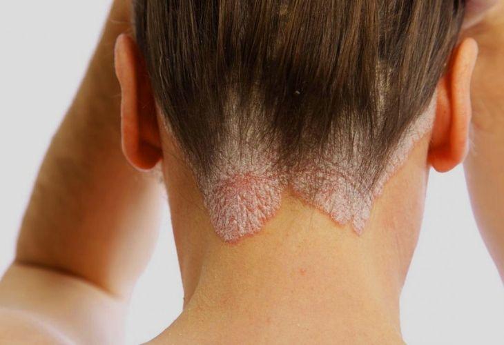 Vảy nến da đầu gây ra bởi sự tăng sinh tế bào thượng bì bất thường