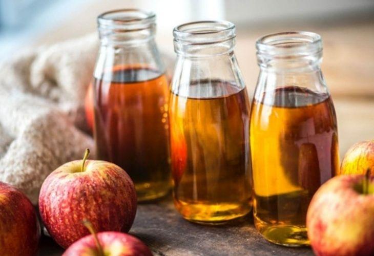 Người bệnh có thể áp dụng bài thuốc từ giấm táo để loại bỏ vảy nến da đầu