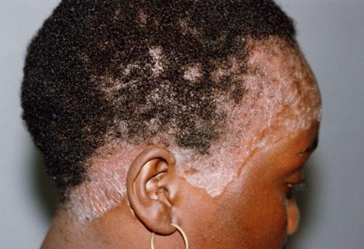 Bệnh vảy nến da đầu không lây nhiễm từ người này sang người khác