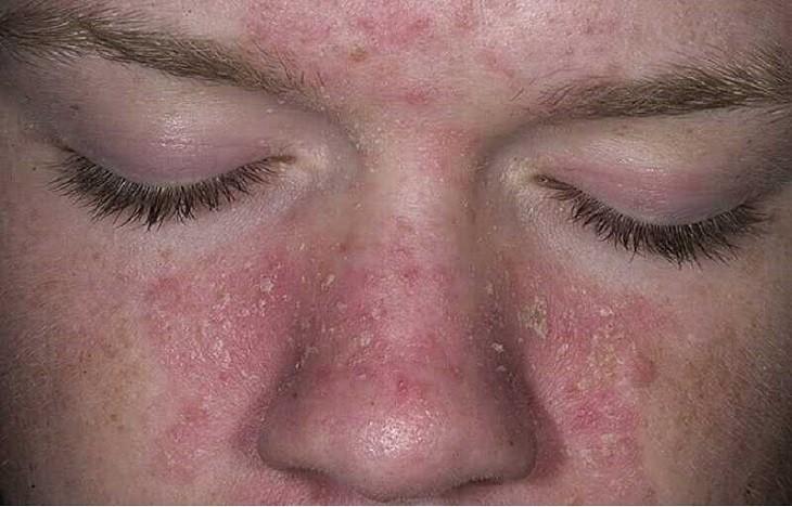 Hoạt động điều trị vảy nến da mặt cần được thực hiện hết sức cẩn trọng