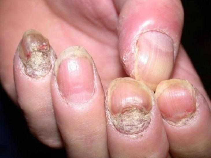 Tìm hiểu chi tiết nguyên nhân - triệu chứng - cách điều trị vảy nến móng tay