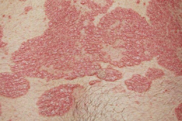Bệnh vảy nến vùng kín hay vảy nến sinh dục là tình trạng tổn thương da mãn tính