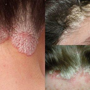 Viêm da cơ địa ở đầu là bệnh lý dễ tiến triển thành mãn tính