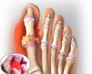 Khớp bị đau và sưng do bệnh gout