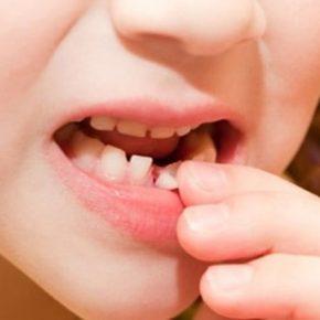 Nhổ răng sữa mọc lệch cần được được thực hiện theo hướng dẫn của nha sĩ