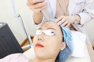 Sau khi đốt tàn nhang có nên rửa mặt không? Cách chăm sóc da mặt hiệu quả