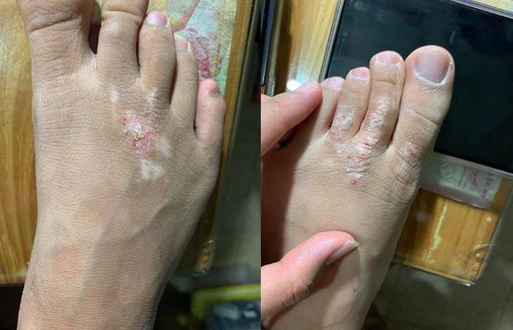 Hình ảnh viêm da cơ địa của chị Hạnh trước khi dùng An Bì Thang