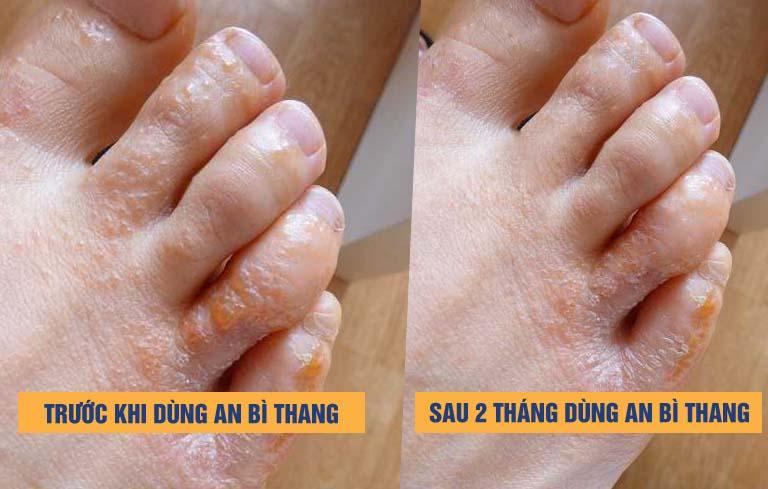 Kết quả điều trị bài thuốc An Bì Thang
