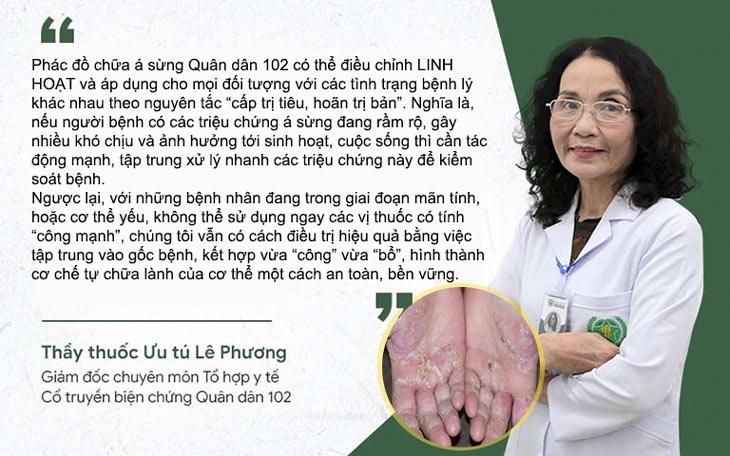Bác sĩ Lê Phương chia sẻ về nguyên tắc điều trị đối với bệnh á sừng tại Quân dân 102