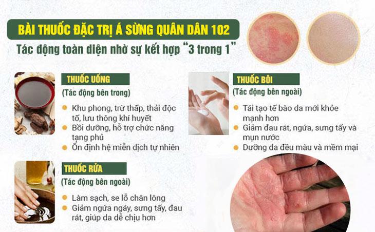 Bài thuốc Á sừng Quân dân 102 mang đến hiệu quả gấp 3 với sự kết hợp UỐNG - BÔI - NGÂM - RỬA
