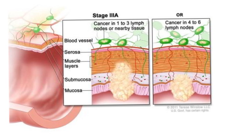 Các giai đoạn ung thư dạ dày