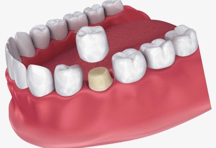 Bọc răng sứ để bảo vệ tủy răng và đảm bảo chức năng ăn nhai cho người bệnh.