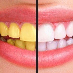 Cách trị răng ố vàng