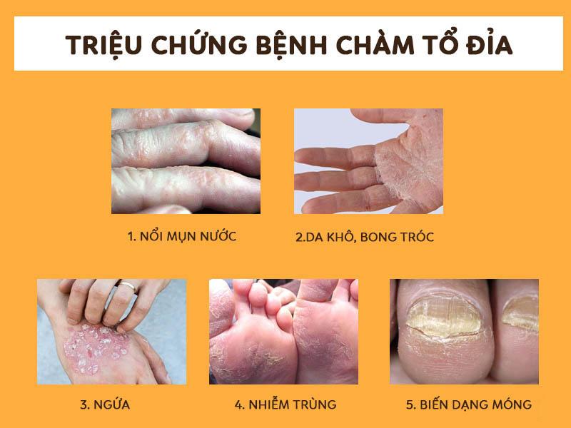 Những triệu chứng bệnh thường gặp