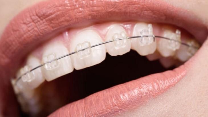Niềng răng sớm sẽ giúp tiết kiệm được chi phí niềng răng 1 hàm