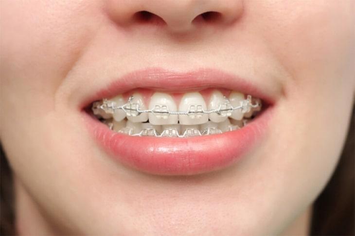 Tình trạng răng càng phức tạp thì chi phí niềng răng 2 hàm sẽ càng cao