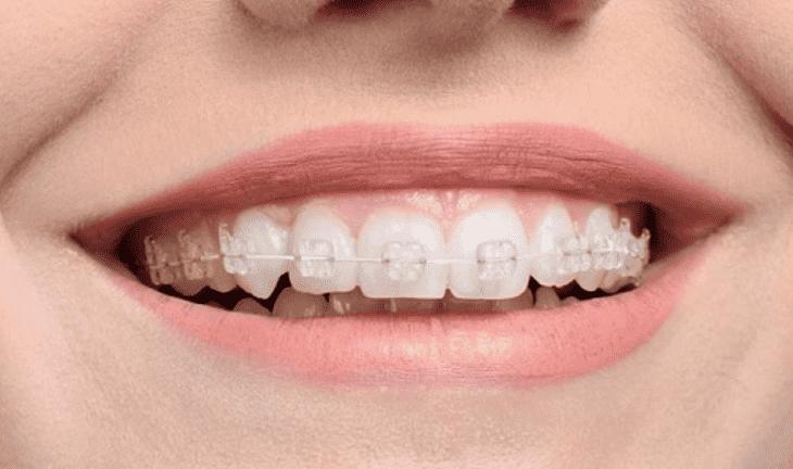 Niềng răng 2 hàm mắc cài sứ giúp bạn không sợ bị lộ mắc cài