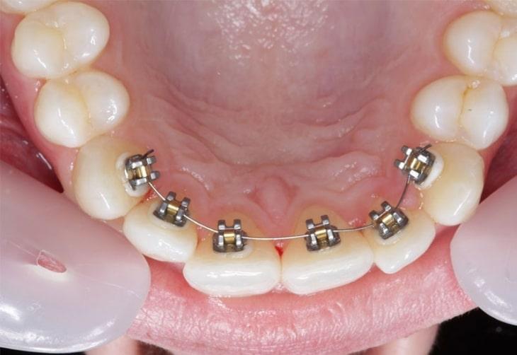 Mắc cài mặt trong giúp người niềng răng che khuất mắc cài hiệu quả