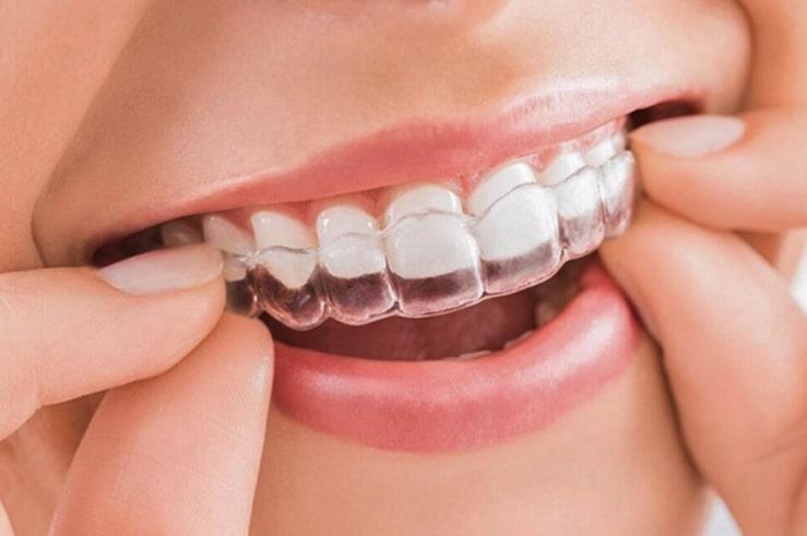 Niềng răng trong suốt Invisalign là phương pháp hiện đại nhất nên giá thành cũng khá cao