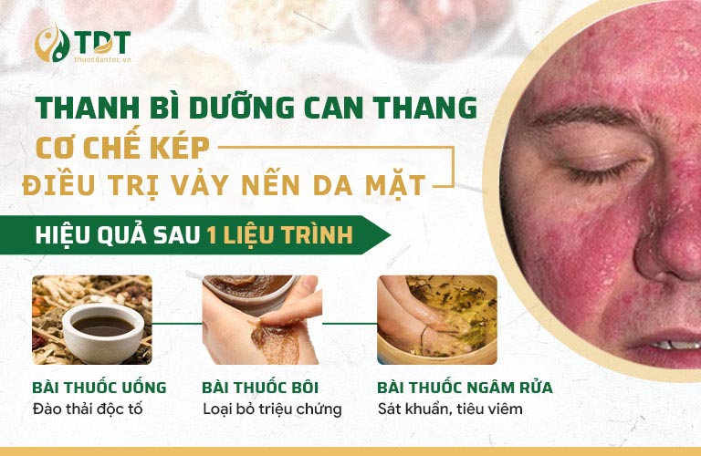 3 nhóm thuốc điều trị chuyên sâu vảy nến da mặt