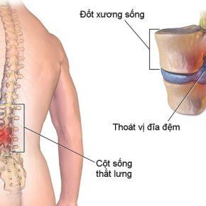 Xẹp đĩa đệm: Nguyên nhân, triệu chứng và hướng điều trị