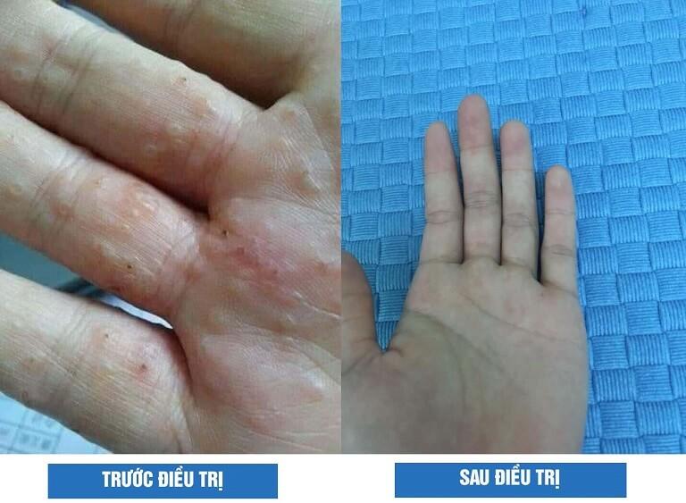 Hình ảnh trước và sau điều trị của bệnh nhân Tô Duy Linh (TP.HCM) khi điều trị tổ đỉa tại Trung tâm Thuốc dân tộc cơ sở 145 Hoa Lan