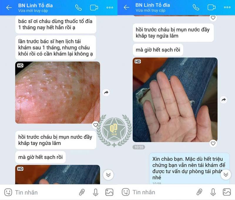 Phàn hồi của người bệnh sau quá trình điều trị tổ đỉa tại Quân dân 102