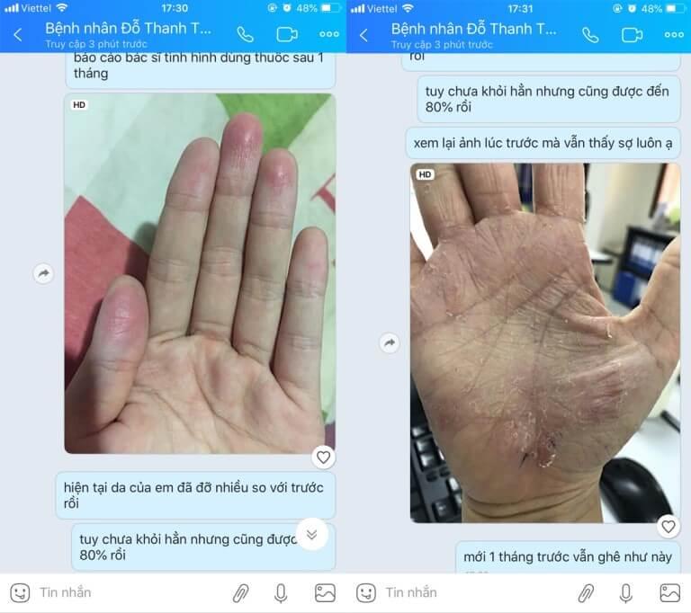 Phản hồi của bệnh nhân Đỗ Thanh Thảo (Hà Nội)