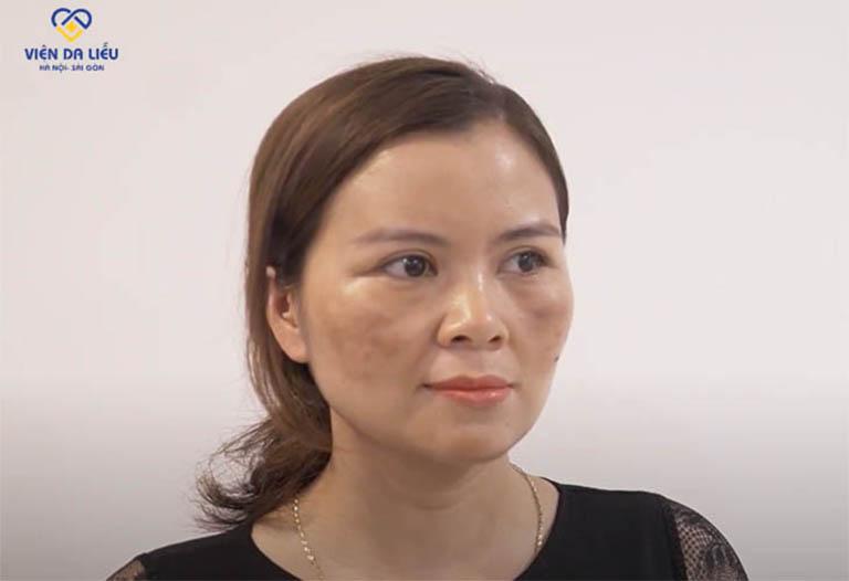 Tình trạng nám của chị Mơ khi đến Trung tâm Da liễu Đông y Việt Nam