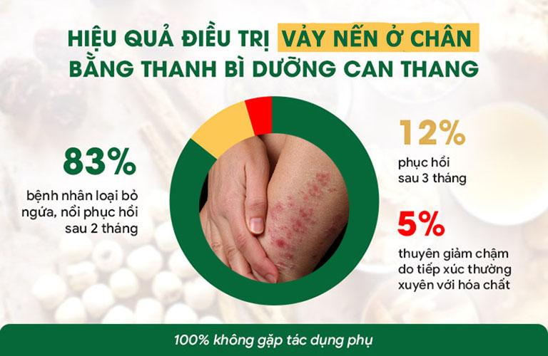 Hiệu quả điều trị vảy nến ở chân với bài thuốc