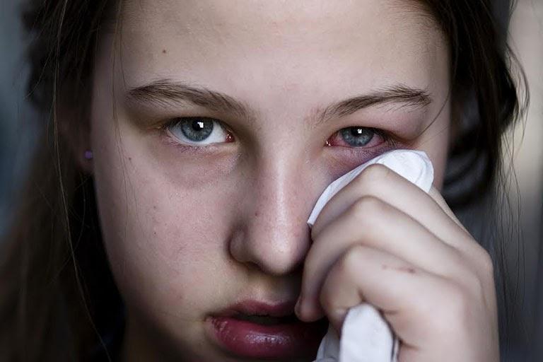 Rất nhiều trường hợp gặp biến chứng ở mắt do điều trị viêm xoang không đúng cách