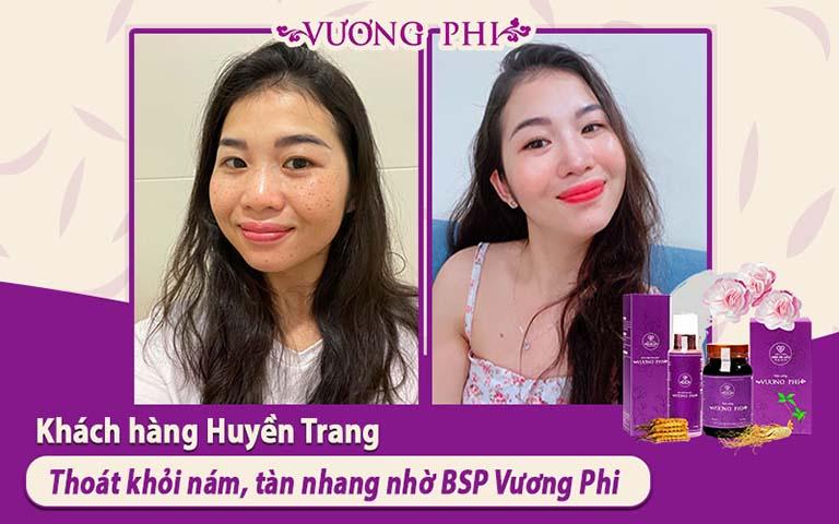 Hình ảnh TRƯỚC - SAU liệu trình sử dụng Vương Phi của khách hàng Ngô Huyền Trang