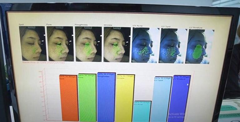 Hình ảnh soi da cho thấy tình trạng tàn nhang của Hoài An tương đối phức tạp, cần hỗ trợ trị tích cực