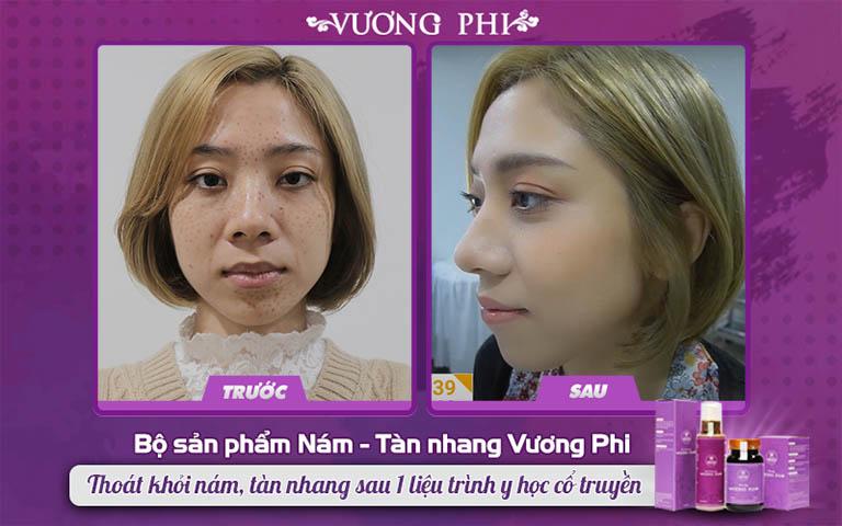 Làn da sạch vết tàn nhang tại buổi tái khám của bà mẹ đơn thân