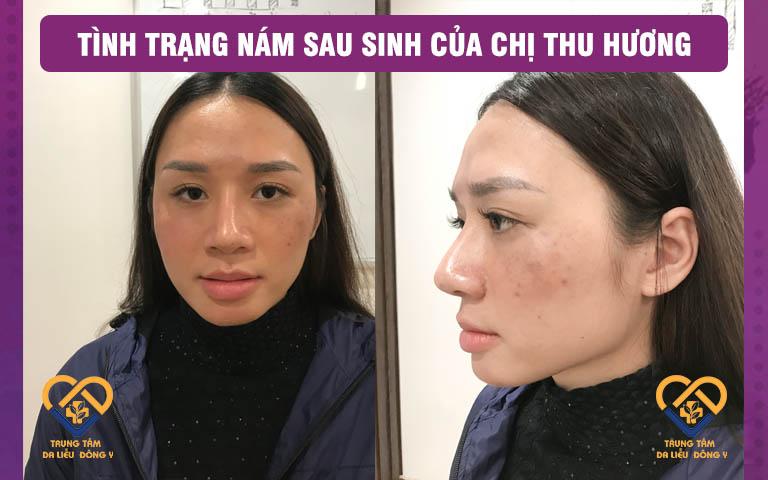 Tình trạng nám da của Thu Hương bị tổn thương do rối loạn nội tiết và lạm dụng laser